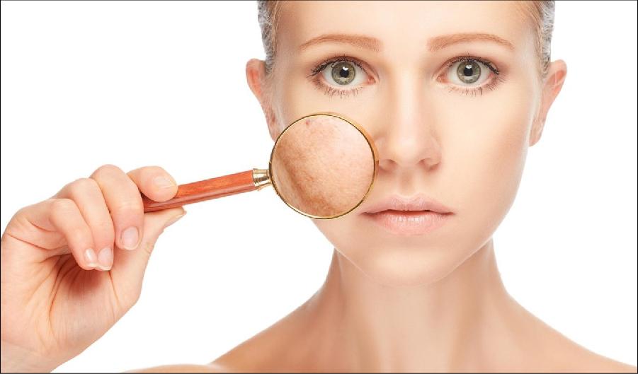 nguyen nhân nám da và cách điều trị